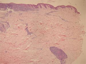 In the papillary dermis, intense inflammatory infiltrate with a predominance of lymphocytes is shown, without compromising the epidermis. In the deep reticular dermis, medium-caliber vessels surrounded by mononuclear infiltrates are shown (Hematoxylin & eosin, ×40).