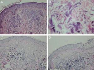 Optical microscopy: (A) basophilic alterations in the superficial dermis (Hematoxylin & eosin ×150). (B) Detail of basophilic alterations with irregular and fragmented material (Hematoxylin & eosin, ×400). (C and D) Reduced elastic fibers in the basophilic areas (Verhoeff, ×150).