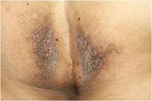 Confluent brown papules and plaques on the perianal area.