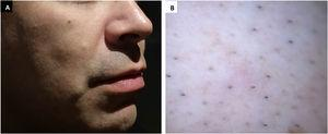 (A) Skin-colored papule on the right cheek. (B) Polarized dermoscopic image showing non-characteristic features.