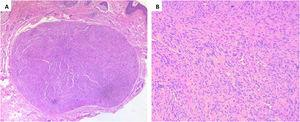 (A) A well-defined encapsulated tumor in the dermis (Hematoxylin & eosin, ×100). (B) Spindle Schwann cells with Verocay bodies, Anthony B pattern (Hematoxylin & eosin, ×200).