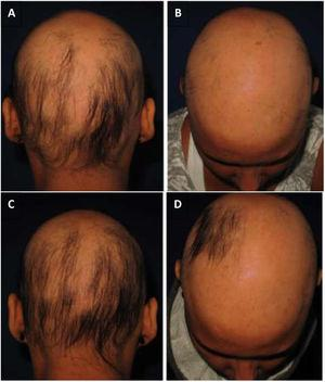 (A and B) DPCP – initial appointment; (C and D) DPCP – 17 applications. The patient was treated with 17 applications of DPCP and presented hair regrowth. (A and B) Initial assessment; (C and D) after 17 applications of DPCP.