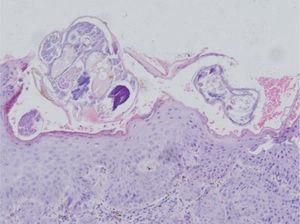 Skin biopsy from glans showed hyperkeratosis, acanthosis of stratum malpighii. Stratum corneum revealed multiple subcorneal burrows containing Sarcoptes scabiei larvae and eggs. Dermis had inflammatory cell infiltration rich in eosinophils and lymphocytes (Hematoxylin & eosin stain, original magnification, ×20).