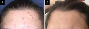 Case 2, (A), Erythematous and excoriated papules, and hyperpigmented macules on the forehead of the patient with acne excoriée. (B), Complete clinical improvement after 6-weeks on N-acetylcysteine treatment.