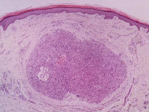 Dermal leiomyosarcoma – low power field. Nodular lesion located in the dermis, non-encapsulated, and without connection with the adjacent epidermis (Hemathoxylin & eosin, ×40).