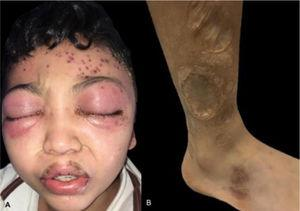 (A), Periorbital edema, and erythema with left frontal vesico-blisters with hemorrhagic content. (B), Multiple atrophic and some anetodermic scars on the lower limbs.