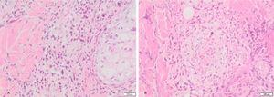 (A), Atypical perivascular and perianexial lymphoid infiltrates. (B), Angiocentricity.