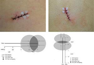 Marking of BTA stitches with a schematic representation of the proposed methodology.