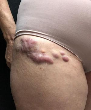 Cutaneous mantle-cell lymphoma. Erythematous-brownish nodules and tumors on the right inguinal crural region.