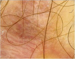 The dermoscopic image of the first scar. The polymorphic pattern with a predominance of linear irregular vessels was visible.