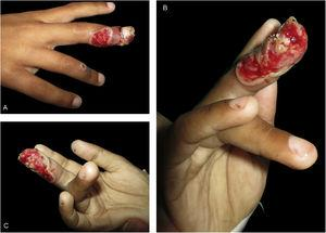 (A-B-C) Extensive ulceration with the border outlined by a whitish epidermal flap on the third right finger, with periungual involvement. On the fourth right finger an umbilicated vesicle can be observed.