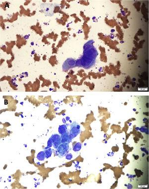(A–B) multinucleated squamous cells with nuclear molding and ground-glass appearance compatible with HSV viral infection (Giemsa, ×400).