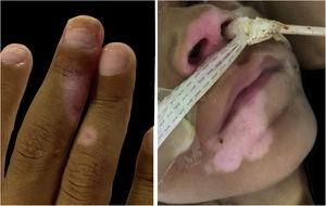 Residual hypochromic lesions after acyclovir therapy.