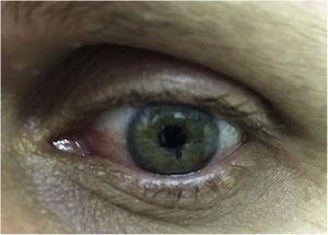 To the naked eye: Possible brownish-yellow spots on the iris.