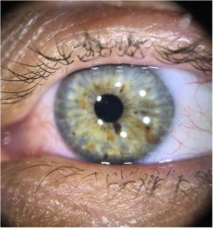 Dermoscopy with polarized light: Lisch nodules on the iris (brownish-yellow lesions of varying hues, with wide distribution).