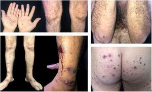 Purpuric lesions on the hands; papulopustular, purpuric, and ulceronecrotic lesions on the lower limbs, and ulceronecrotic lesions on the gluteal region and elbow.