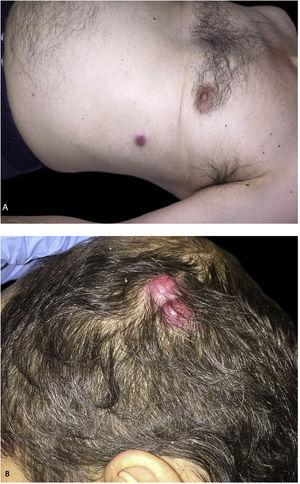 Multiple erythemato-violaceous nodules on the trunk (A) and the scalp (B).