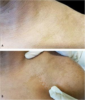 Zirelí propaedeutic maneuver in a pityriasis versicolor lesion on the left shoulder: (A) at rest; (B) after stretching (Zirelí sign), causing furfuraceous scales to detach and making the lesions evident.