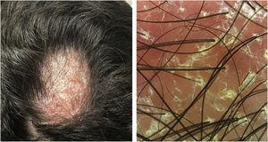 Erythematous-scaling alopecia plaque on the vertex region, measuring approximately 5cm in its largest diameter. Dermoscopy showed erythema and follicular and interfollicular desquamation, suggesting an eczema pattern.