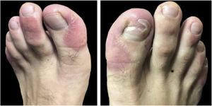 Erythematous scaling plaques on toes and onychodystrophy on the right hallux.