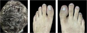 Ten months after the onset of the condition, with complete hair regrowth and remission of erythematous-scaling lesions on toes and onychodystrophy undergoing resolution on the right hallux.