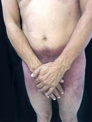 SDRIFE: erythematous-purpuric macules affecting the suprapubic region, lateral thighs and inguino-crural region.