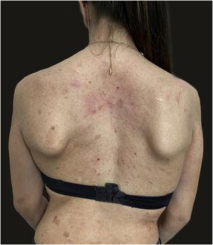 Remission of atopic dermatitis after 4 weeks of treatment with dupilumab. Residual eczematous lesions, as seen on the neck, determined an EASI score of 4.