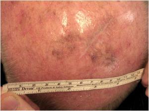 50% resolution of the lentigo maligna after 4 months of 5% Imiquimod.