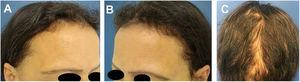 Case 2: (A), Frontal fringe. (B), hair rarefaction on the temporal region and (C), occipital fringe hair regrowth after effluvium post-weight loss.