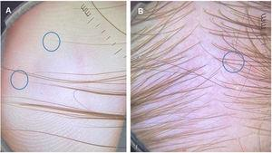 Analysis of hair ends: (A), the tapered ends correspond to short regrowing hairs. (B), Trichoscopy of the occipital area shows several short hairs with tapered ends.