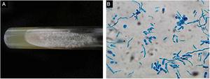 Face ulcer culture. (A), Trichosporon spp. colonies showed a raised, waxy appearance with radial furrows on Sabouraud culture. (B), Culture smear revealed hyphae, blastoconidia and arthroconidia with cotton blue stain.