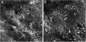 Reflectance confocal microscopy showing (A), irregular and disarranged honeycomb pattern and several bright, roundish nucleated cells with a targetoid appearance (arrows) in the epidermis. (B), edged papillae and multiple bright plump cells in the papillary dermis.