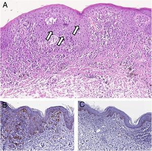 (A), Histopathology showing in the epidermis atypical features consisting of abnormal maturation of keratinocytes, prominent nucleoli, and many dyskeratotic cells (arrows). In the superficial dermis, ectatic vessels, a moderate lymphohistiocytic infiltrate and melanophages may be observed (Hematoxyline & eosin, ×150). (B), At immunohistochemistry CD1a+Langerhans cells, may be observed (Immunohistochemical, ×200). (C), Immunohistochemical staining for Melan A showed no atypical melanocytes. Hyperpigmentation of keratinocytes of the basal layer is evident (Immunohistochemical, ×150).