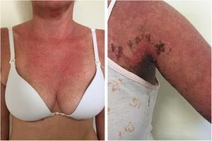 """Acute LE and NET-like. Left: acute LE: diffuse erythema on the neck, in a sun-exposed area. Right: erythema and diffuse edema with exulcerations and crust formation, characterizing the more evident detachment of the skin in the axillary region (""""lupus with bullae"""")."""