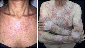 Subacute LE. Subacute lupus erythematosus: erythematous squamous lesions and vitiligous-like lesions affecting the anterior trunk and extensor surface of the upper limbs and dorsum of the hands.