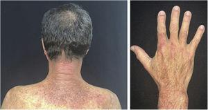 """Dermatomyositis. Left: characteristic erythema on the posterior cervical region and upper back (""""shawl sign""""). Right: erythema on the back of the hands (Gottron's sign)."""