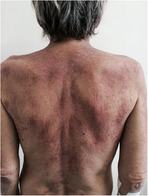 Adult-onset Still's disease – flagellated lesions. Linear flagellate macules of adult-onset Still's disease.