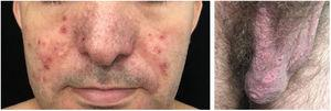 Behcet's disease. Acneiform vesico-pustules on the face and ulcers on the scrotum (painful).