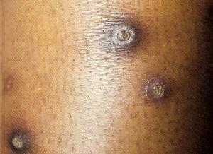 Acquired perforating dermatosis (Kyrle's disease). Dr. Alexandre Gripp's personal collection.