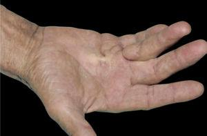 Dupuytren's contracture. Dr. Alexandre Gripp's personal collection.
