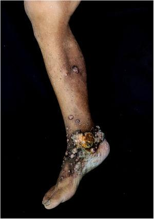 Keloid-like papules and nodules on the right lower limb.