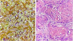 (A), Numerous fungal spores (Grocott, ×400). (B), Proliferation of tumor cells with the presence of atypical mitosis and horn pearls (Hematoxylin & eosin).