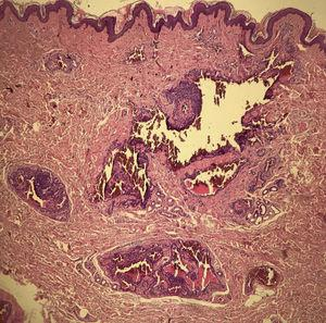 Histopathology showed intradermal nests of monomorphic glomus cells, with rounded nuclei, organized in single or multiple cords around exuberant vascular structures, corresponding to a glomangioma. (Hematoxylin & eosin, ×40).