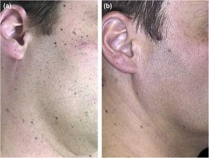Clinical follow-up images. (A), Multiple small black macules on the face and neck. (B), 7 years later most of the Spitz nevi have completely regressed.