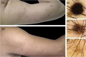 Clinical and dermoscopic follow-up images. (A), Multiple small black and brown macules on the right arm. (B), 7 years later most of the Spitz nevi have completely regressed. (C–E) Dermoscopic follow-up of a representative nevus. C, Starburst pattern: central area of homogeneous black pigmentation and symmetrically distributed peripheral streaks. D, Brown homogeneous pattern. E, Regressing nevus.