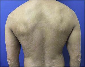 PASI 12.9, erythematous-scaling plaques.