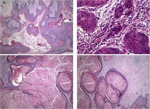 Histopathological features showing neoplastic tissue with an endophytic pattern of growth with abundant keratinization (A). A mixed inflammatory infiltrate composed primarily of lymphocytes and some neutrophils were seen in some areas (B). The endophytic epithelial growth was forming a complex network of connected canaliculi resembling rabbit burrows (C and D). Original magnification was ×10 (A, C and D) and ×40 (B).