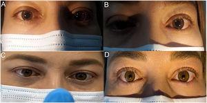Paciente con midriasis pupilar bilateral. La pupila derecha (a) y la pupila izquierda (b) muestran midriasis fija no reactiva a la luz. Constricción pupilar bilateral al acomodar (c). Después de la instilación de pilocarpina al 0,125%, ambas pupilas muestran una fuerte constricción (d).