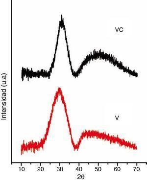 Análisis DRX de los recubrimientos de VC y C proyectados sobre el sustrato de SiC.