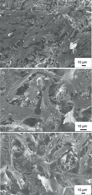 SEM images on MG-63 cells grown on titanium substrate (a) on HAp coating (b) and on mHAp coating after 2 days of culture in DMEM medium.
